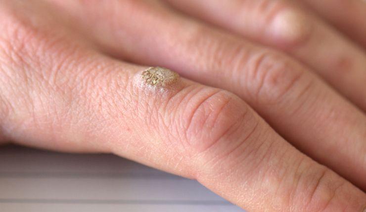 por que se producen las verrugas en la piel