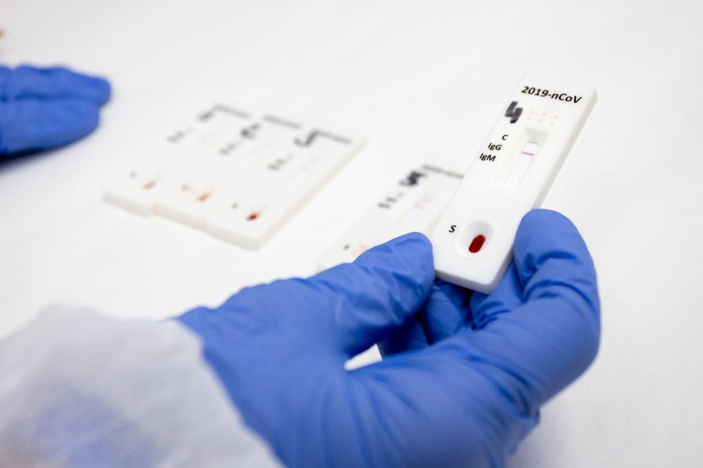 Servicios esenciales y personas vulnerables en el grupo de test