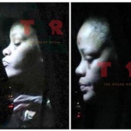 Rihanna heridas